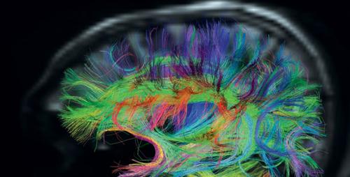Сканирование мозга, связи между отделами мозга. При аутизме проводящие пути между отделами мозга могут быть ослаблены.
